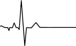 Сердебиение